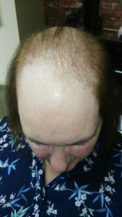 Ladies Before pattern baldness